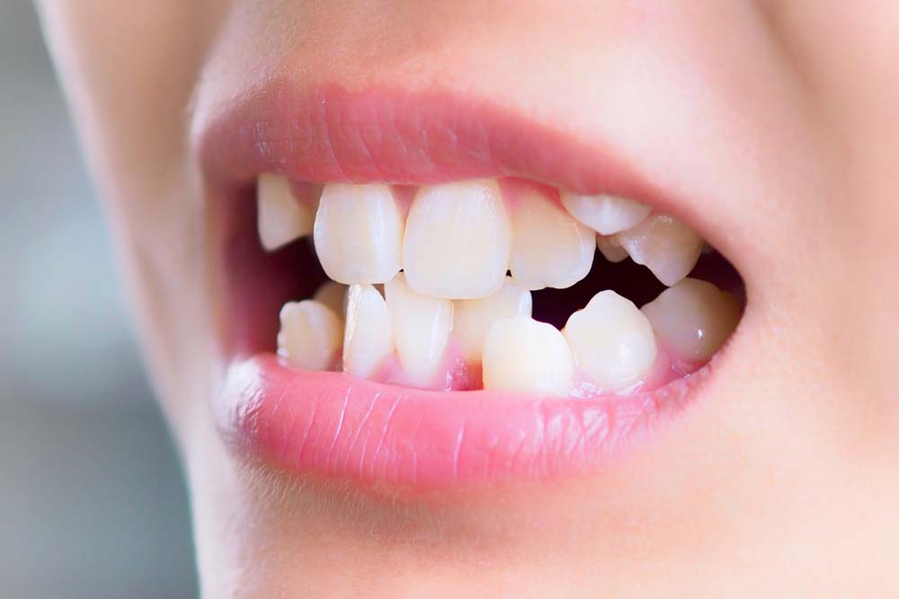kid with overcrowded malocclusion teeth
