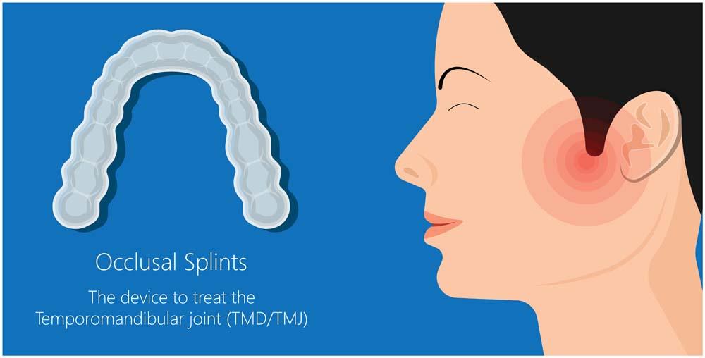 mouthguard splint for Tmd tmj disorder
