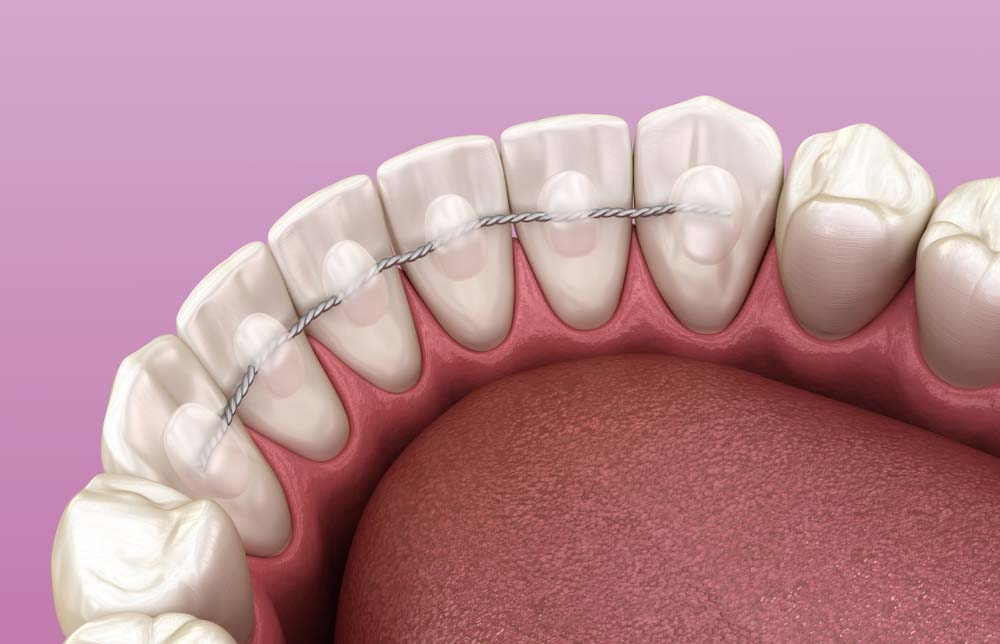 adult lingual wire braces on back of teeth