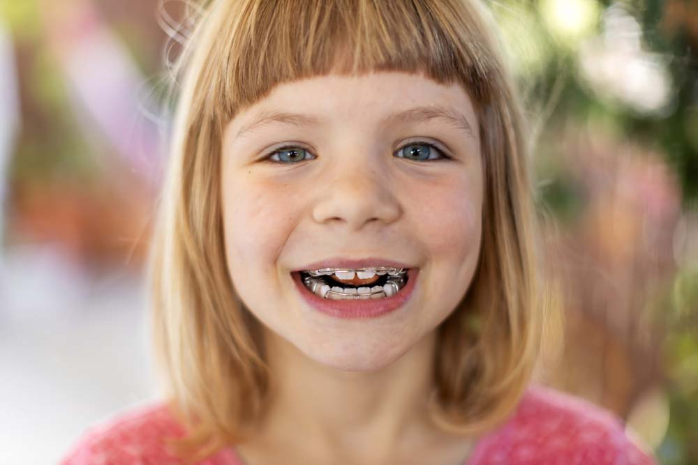 girl smiling with braces retainer
