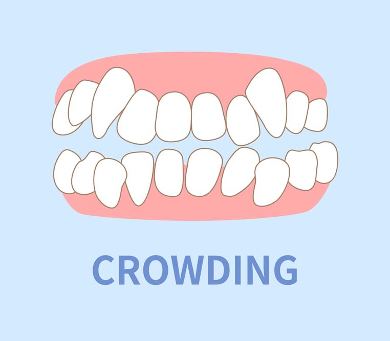graphic of teeth overcrowding