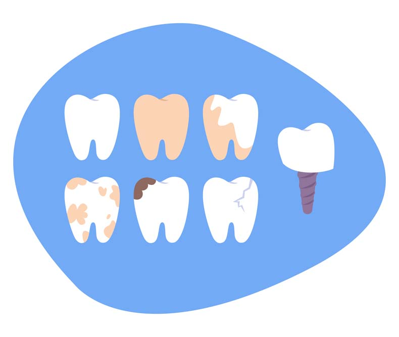 wisdom tooth disease decay