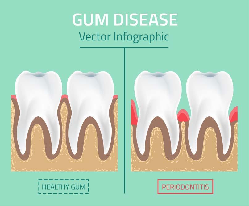 gum disease infograph
