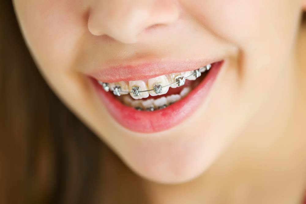 young girl smiling with ceramic braces