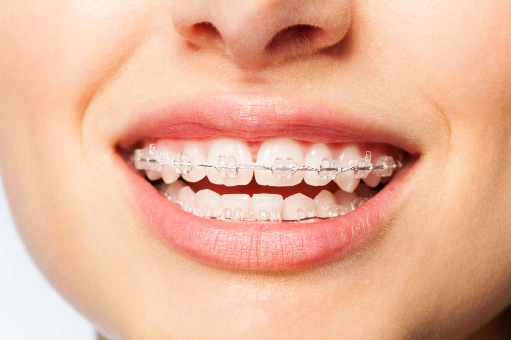 adult woman with clear ceramic braces