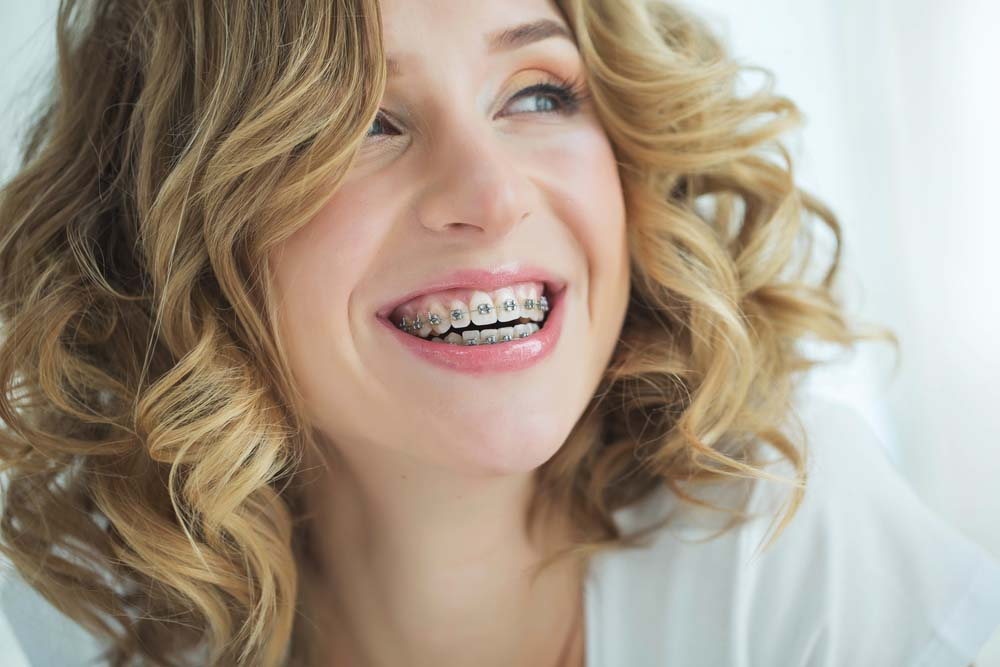 adult woman smiling with ceramic braces